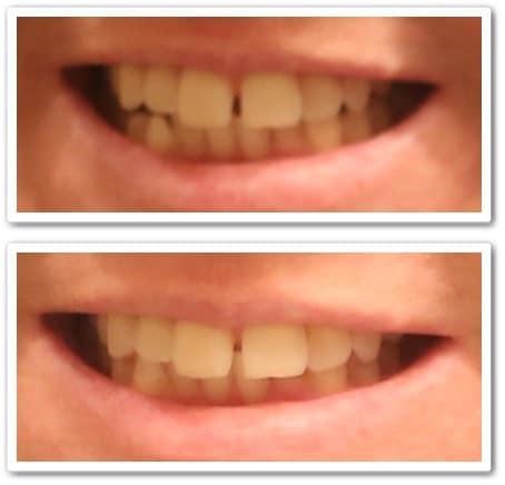 Smile Brilliant LED Teeth Whitening